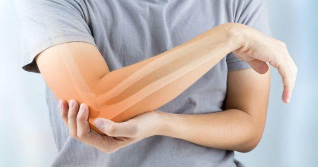 revmatoeidis-arthritida